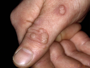 Skin diseases-Viral Warts