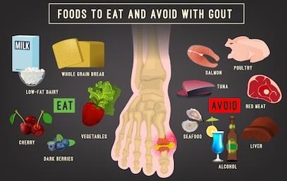 gout arthritis infographic foods eat
