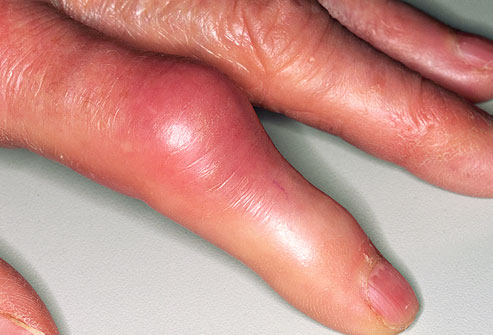 gout finger