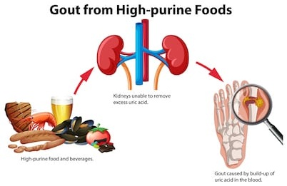 gout high purine foods