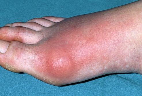 gout in a foot