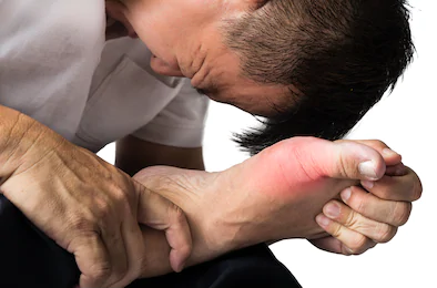 12 Best Homoeopathic Medicines for Gout