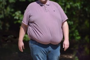 Read more about the article Obesity And Weight Loss!!