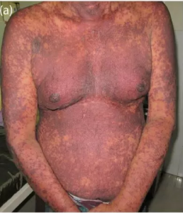 Steven-Johnson Syndrome After COVID-19 Vaccination : First Case Reported by All India Institute of Medical Sciences (AIIMS), Bhubaneswar